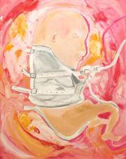 Straitjacket Fetus 22_ x 28_ acrylic on canvas 2015 Spangenberg